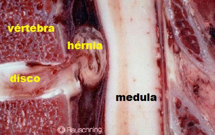 La solución a la Hernia de disco trata con infiltración de Ozono.